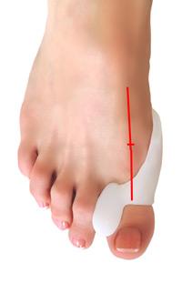 Správné postavení palce při používání meziprstního korektoru