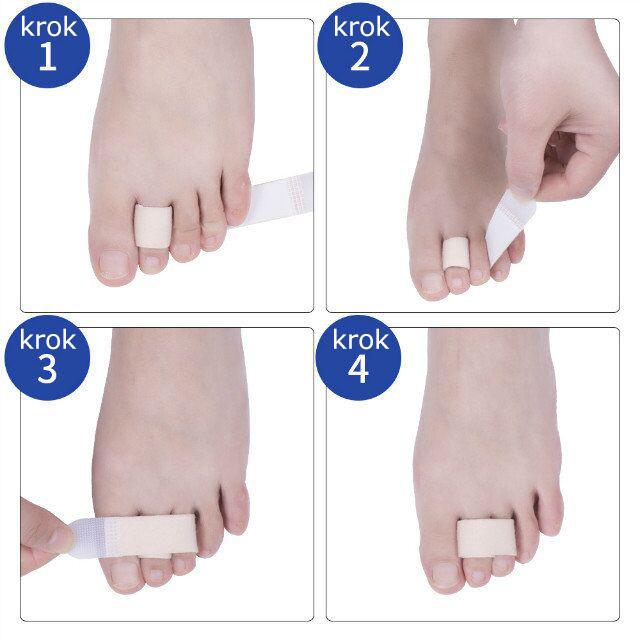 Stahovací pásek na prsty - postup upevnění