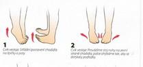 Poradíme Vám jak na problémy s plochou nohou